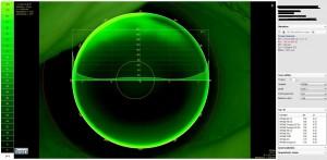 Topographieunterstützte Kontaktlinsenanpassung