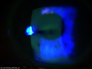 Die Fluoreszeinfärbung veranschaulicht die Stabilität des Tränenfilms: Unterhalb des Zentrums reißt der Tränenfilm bereits auf.