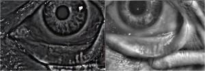 Die Meibographie zeigt den Ausfall des Drüsengewebes an.