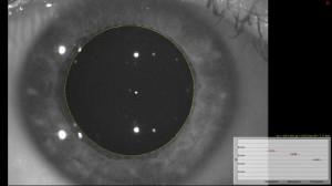 Die Pupillengröße wird bei verschiedenen Lichtstärken gemessen.