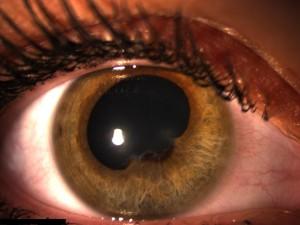 """Die Regenbogenhaut ist durch die Entzündung an mehreren Stellen mit der Linse verklebt. Beim Versuch der Pupillenerweiterung sind die Verklebungsstellen (""""Synechien"""") sichtbar."""