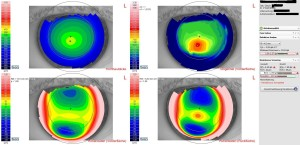 Darstellung des Hornhautreliefs bei starker Hornhautverkrümmung: es besteht der Verdacht auf einen Keratokonus (krankhafte Hornhautverkrümmung und -verdünnung).